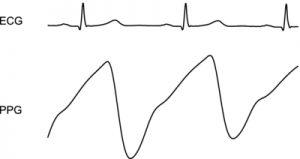 Señales QRS de ECG y PPG para cálculo de ritmo cardiaco